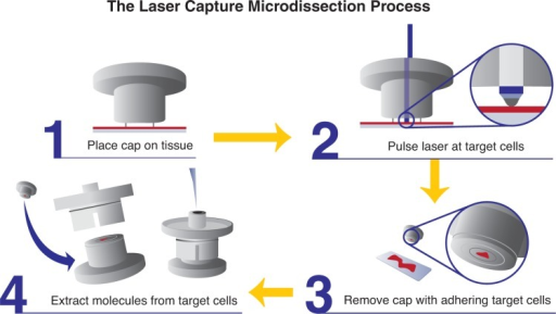 Schematic showing laser capture microdissection.