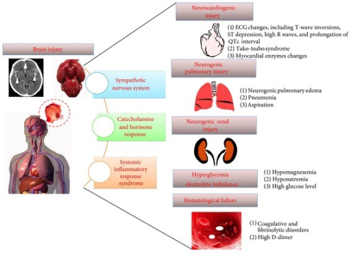 Schematic of nonneurologic medical complications following subarachnoid hemorrhage.