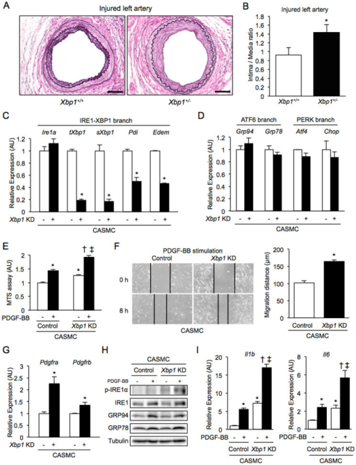 Neointima formation, cell proliferation, cell migration and inflammation in Xbp1 haploinsufficiency.(A), (B). Left femoral arteries of 7-8-week-old male Xbp1+/+ (n = 7) and Xbp1+/− (n = 7) mice were subjected to wire-induced vascular injury. After 4 weeks, EVG staining was performed in the left femoral artery (A). Scale bars: 50 µm. The extent of neointima formation was evaluated as intima-to-media ratio in the wire-injured artery of Xbp1+/+ and Xbp1+/− mice (B). *P < 0.05. (C), (D). Gene expression of unfolded protein response (UPR) markers in the IRE1α-XBP1 branch (C) and the other branches (D) in Xbp1-knockdown human coronary artery smooth muscle cells (CASMC). *P < 0.05. (E). Cell proliferation was assessed by an MTS assay in Xbp1-knockdown CASMC with 20 ng/ml platelet-derived growth factor-BB (PDGF-BB) for 48 h. *P < 0.05 vs. Control-PDGF-BB(-); †P < 0.05 vs. Xbp1 KD-PDGF-BB(-); ‡P < 0.05 vs. Control-PDGF-BB(+). (F). Cell migration was assessed by a scratch wound assay in Xbp1-knockdown CASMC treated with 20 ng/ml PDGF-BB for 8 h. Photographs were taken, and migration distance was measured by ImageJ. *P < 0.05. (G). Gene expression of PDGF receptors, PDGFR-α and PDGFR-β, in Xbp1-knockdown CASMC. *P < 0.05. (H). Western blotting analysis of ER stress markers in Xbp1-knockdown CASMC treated with 20 ng/ml PDGF-BB for 48 h. (I). Gene expression of inflammatory markers, IL-1β and IL-6, in Xbp1-knockdown CASMC treated with 20 ng/ml PDGF-BB for 48 h. *P < 0.05 vs. Control-PDGF-BB(−); †P < 0.05 vs. Xbp1 KD-PDGF-BB(−); ‡P < 0.05 vs. Control-PDGF-BB(+).