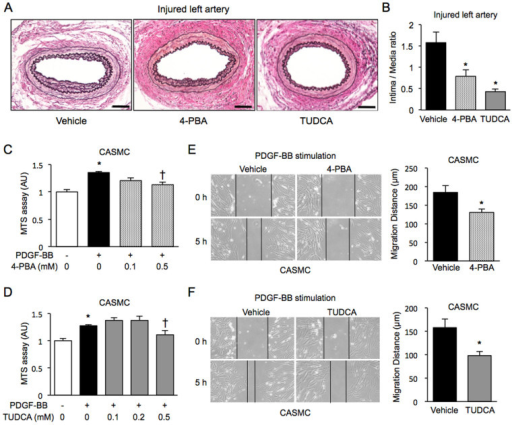 Effects of chemical chaperones on neointima formation, cell proliferation and cell migration.(A), (B). Representative staining of EVG in the wired-injured left femoral arteries of mice treated with daily intraperitoneal injection of a vehicle (n = 11), 100 mg/kg 4-PBA (n = 8) or 500 mg/kg TUDCA (n = 6) for 4 weeks (A). Scale bars: 50 µm. The extent of neointima formation was evaluated as intima-to-media ratio in the wire-injured femoral artery (B). *P < 0.05 vs. Vehicle. (C), (D). Cell proliferation was assessed by an MTS assay in chronic stimulation with 20 ng/ml PDGF-BB for 48 h in CASMC treated with 0-0.5 mM of 4-PBA (C) or 0–0.5 mM of TUDCA (D). *P < 0.05 vs. PDGF-BB(−); †P < 0.05 vs. PDGF-BB(+). (E), (F). Cell migration was assessed by a scratch wound assay in CASMC treated with 0.5 mM 4-PBA (E) or 0.5 mM TUDCA (F) upon stimulation with PDGF-BB for 5 h. Photographs were taken, and migration distance was measured by ImageJ. *P < 0.05.