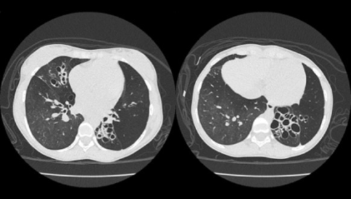 High-resolution computed tomography of the chest showing bilateral cylindrical and saccular bronchiectasis with mosaic attenuation. The areas of low attenuation showed little change in cross-sectional area during expiration, and also did not show the normal increase in attenuation, confirming gas trapping (expiratory sequence not shown here).