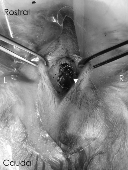 The exenteration of the intranasal mass lesion. The nasal cavity was exposed by meansof a dorsal midline approach using a carbon dioxide laser, and the mass attached to thenasal septum (arrowhead) and turbinates lining the nasal cavity was extirpated. Noobvious bone invasion or destruction was observed. The other rostral mass detected bycomputed tomography (CT) (Fig. 1) wasdetermined to be nasal discharge.