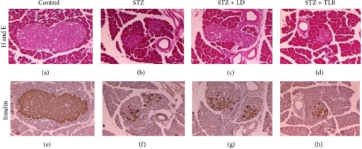 Immunohistochemical (IHC) and H&E staining of pancreatic islets in STZ-induced diabetic rats. Pancreases were obtained from control ((a), (e)), diabetic control ((b), (f)), LD-treated diabetic group ((c), (g)), and TLB-treated diabetic group ((d), (h)). Islets and adjoining exocrine regions were stained with H&E ((a)–(d)). Islets were labeled with an anti-insulin antibody and peroxidase-labeled anti-rabbit IgG ((e)–(h)). Scale bar is 100 μm. LD (L. davurica) and TLB (tolbutamide) were administered at a dose of 250 mg/kg BW for 4 weeks.