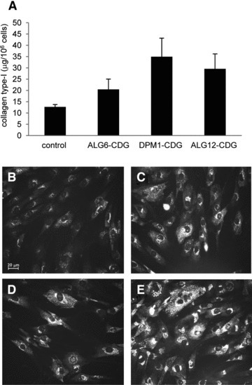 Collagen type-I levels in CDG and healthy control fibroblasts. Total collagen in fibroblasts measured by Sircol assay, shown are averages and SEM of three assays (A). Immunofluorescence staining of collagen type-I in healthy control fibroblasts (B), ALG6-CDG fibroblasts (C), DPM1-CDG fibroblasts (D) and ALG12-CDG fibroblasts (E).