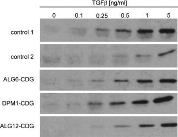 Sensitivity of CDG and healthy control fibroblasts to TGF-β. Fibroblasts from healthy controls and CDG patients were treated with TGF-β for 30 min. Western blot analysis was performed with an antibody to phosphorylated SMAD2.