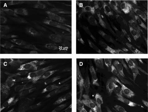 Collagen type-I expression in healthy control fibroblasts after IGFBP5 treatment. Healthy control cells were treated with 0 (A), 0.25 (B), 0.75 (C), 1.5 (D) μg/ml of recombinant IGFBP5 and immunofluorescence was performed with a collagen type-I antibody.