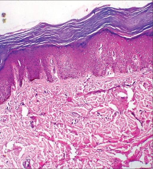Epidermis showing hyperkeratosis, acanthosis, mild parakeratosis, and a prominent granular layer. Superficial dermis was unremarkable and deep dermis showed fibroblastic proliferation with variable vascularity and lack of an inflammatory infiltrate, with thick bundles of irregular collagen (Hematoxylin and eosin ×40)