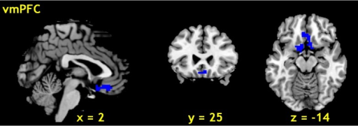 Brain region negatively correlated with skin conductance.The ventromedial prefrontal cortex (vmPFC, x = 2, y = 25, z = -14) showed significant negative correlation with skin conductance across 26 subjects (peak voxel p < 0.001 and cluster level p < 0.05, FWE corrected).