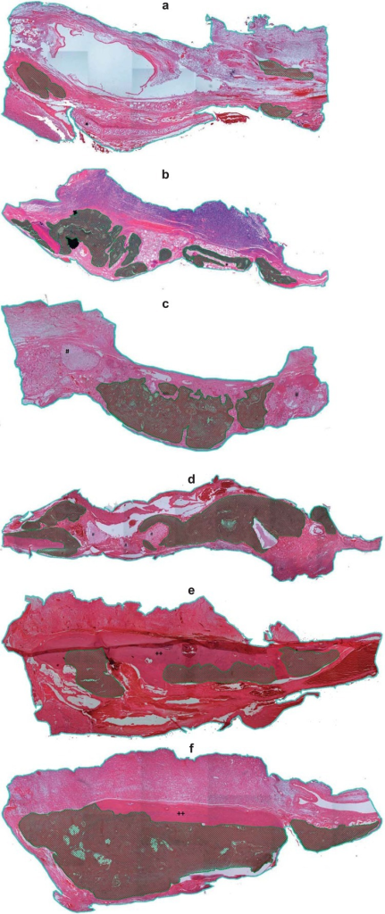 Histomorphometric analysis after reconstruction with autogenous bone graft, powdered synthetic hydroxyapatite implant, andallogeneic cartilage graft, with or without exposure to buried magnetic field, at 60 postoperative days (Blue lines define the total area of the bone defects, and cross hatched areas represent areas of new bone formation within the critical defect). d) Powdered synthetic hydroxyapatite group exposed to buried magnetic stimulation; e) Autogenous bone graft group not exposed to buried magnetic stimulation; f) Autogenous bone graft group exposed to buried magnetic stimulation. * indicates cartilage graft; # indicates hydroxyapatite implant; ++ indicates bone graft