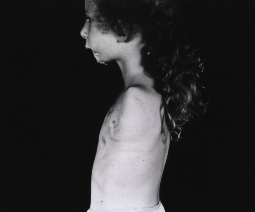 <p>A young girl with her arm amputated at the shoulder stands in profile.  She wears only undershorts.  (The same girl appears in photograph no. 18 in box 1.)</p>