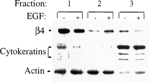 EGF promotes the release of α6β4 integrin from an insoluble cytokeratin fraction and increases its association with an actin fraction. A431 cells were plated on laminin-1 for 1 h and either left untreated or stimulated with EGF (1 ng/ml) for 15 min. The cells were then sequentially extracted to obtain membrane, actin, and cytokeratin fractions (fractions 1, 2, and 3, respectively) as described in Materials and Methods. After solubilization, α6β4 was immunoprecipitated from each fraction using the GoH3 mAb, resolved by SDS-PAGE and detected by immunoblotting using a β4-specific polyclonal antibody. Actin and cytokeratins were detected in each fraction by immunoblotting using an anti-actin polyclonal and pan-cytokeratin monoclonal Abs, respectively. Note that the β4 subunit is detected as a doublet under these conditions.