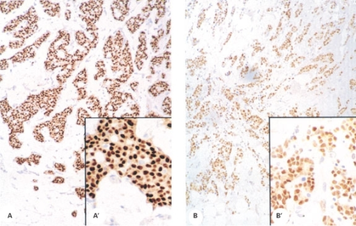 Immunoexpression of ERα in human breast cancers. Nuclear expression of ERα was largely confined to malignant epithelium in the 40 samples in which it was detected; intensity was variable. (A) example of intense immunostaining (sample code 5580); (B) sample code 5667, magnification ×20, insets A′ and B′ show higher power magnification of the same tissue samples.