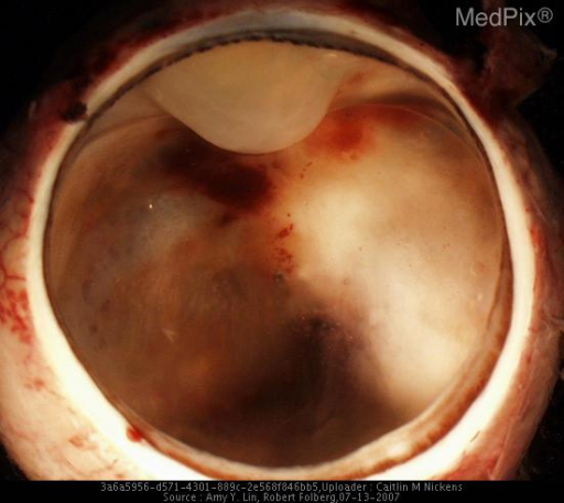 The eye was enucleated.  There is a region of thickening of the retina in the posterior globe.