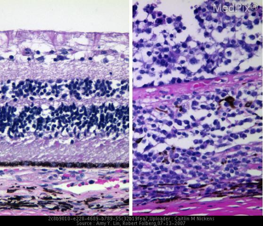 Histology of a patient with Retinal lymphoma. Patient had decreased vision in the right eye.