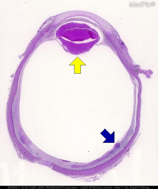 Histology of a patient with Retinal lymphoma. Patient had decreased vision in the right eye. The yellow arrow points to the ocular lens.  The region of thickening of the retina in the posterior globe is hyperchromatic (blue arrow).