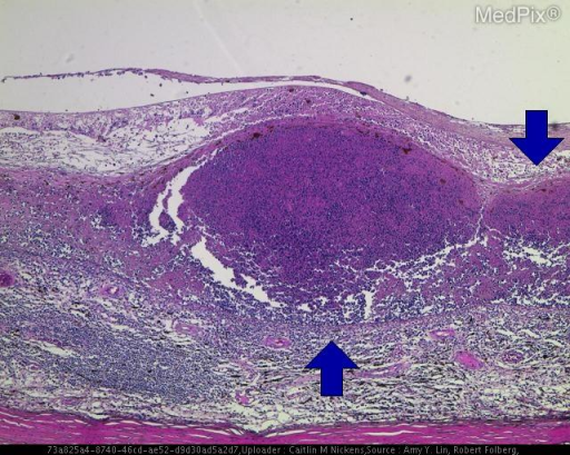 Histology of a patient with Retinal lymphoma. Patient had decreased vision in the right eye. The region of thickening of the retina in the posterior globe is hyperchromatic (blue arrows).