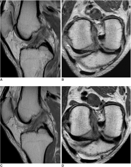 A 54-year-old man with partial tear of anterior cruciate ligament that was confirmed by arthroscopy.A, B. Sagittal (A) and oblique coronal (B) proton density-weighted images 15 days after the trauma show complete tear at the proximal anterior cruciate ligament and marrow contusion at the posterior aspect of the proximal tibia.C, D. Four-months later, the sagittal (C) and oblique coronal (D) images demonstrate restored continuity of anterior cruciate ligament, which shows a band-like high signal intensity within the ligament, a partly obscure contour, mild sagging and an increased thickness. Partial tear of the anterior cruciate ligament was confirmed during arthroscopy 5-months later. The side-to-side difference of the KT-2000 measurement was 5 mm at the time of arthroscopy.