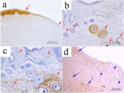 The immunohistological staining of neoregenerative tissues after 6–12 week implantation of E56 PESPs.(a) Cytokeratin MNF116 positive cells were located in epithenium (12-week postimplantation). (b) Cytokeratin MNF116 positive cells were located in hair follicle sheet (6-week postimplantation). (c) Vimentin 9 positive cells were located in the dermis around hair follicles (6-week postimplantation). (d) Vimentin 9 positive cells were located in the deep dermis tissue under the host tissue (12-week postimplantation).
