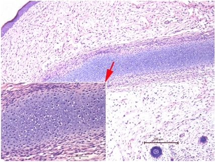 The teratoma-like structure of E42-old PESPs after 6-week implantation.Cartilage tissue and cutaneous tissue were found in neoregenerative tissues (HE, ×200 for larger photo, ×400 for smaller photo).