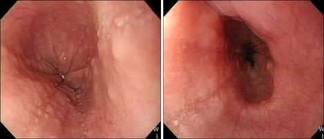 Endoscopy shows some linear furrows and multiple mucosal nodularities on the lower and mid esophagus.