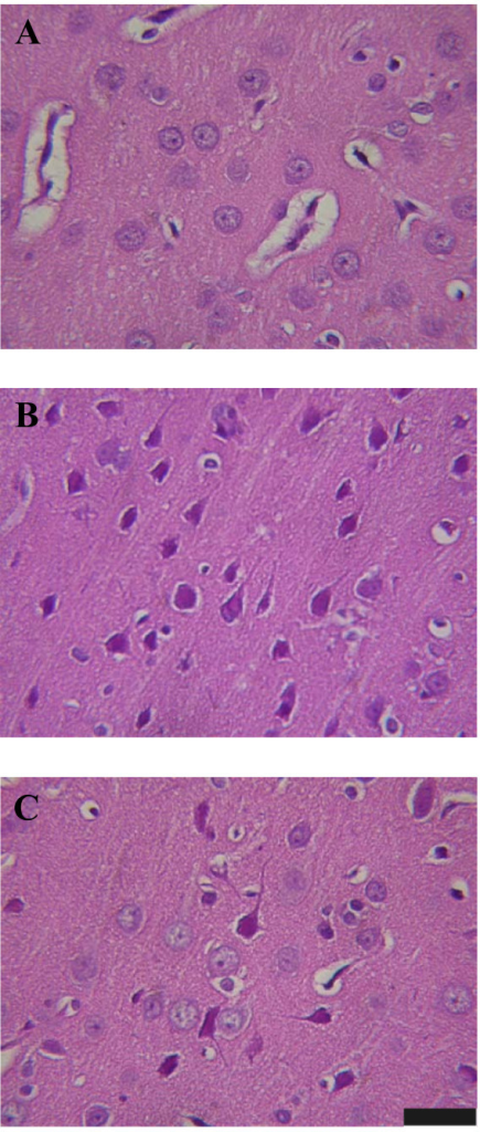 Histological examination of neuronal damage. The photomicrographs of the cerebral corpus striatum in a normothermic control rat treated with 0.9% NaCl solution (11 ml/kg) (A), a heat stroke rat treated with 0.9% NaCl solution (11 ml/kg) (B), or a heat stroke rat treated with the combined agent (DXM+HES) (C) immediately after the initiation of heat stroke. The striatal photomicrograph in a heat stroke rat treated with DXM (4 mg/kg) is similar to (B), and in a heat stroke rat treated with HES (10%, 11 ml/kg) is similar to (C) (data not shown). Twenty-five minutes after 80-min heat exposure, the corpus striatum of the rat treated with 0.9% NaCl solution showed cell shrinkage, pyknosis of the nucleus, and disappearance of nucleolus. After acute treatment with the combined agent, neuronal damage was reduced, as shown in C. The rats were sacrificed at 25 min after the termination of heat exposure or the equivalent time for the normothermic controls. Scale bar, 50 μm.