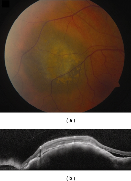 Choroidal melanoma. (a) Small choroidal melanoma with overlying RPE hyperplasia and diffuse orange pigment accumulation. (b) Spectral domain OCT clearly demonstrates subretinal fluid that could have been missed by clinical examination alone. Overlying the dome-shaped elevation of the choroid is a thickened irregular RPE and thickening of the outer retinal layers.