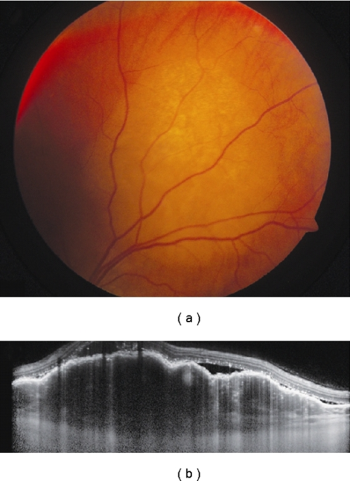 Choroidal metastasis. (a) Amelanotic choroidal metastasis in a patient with breast cancer. (b) EDI OCT reveals both the anterior and posterior margins of the metastasis allowing measurement of tumor thickness and characterization of its internal structure. Multiple nodular elevations of the RPE can also be seen with thickening of the RPE, overlying subretinal fluid, and hyperreflective deposits within the neurosensory detachments presumably from tumor cells or macrophages.