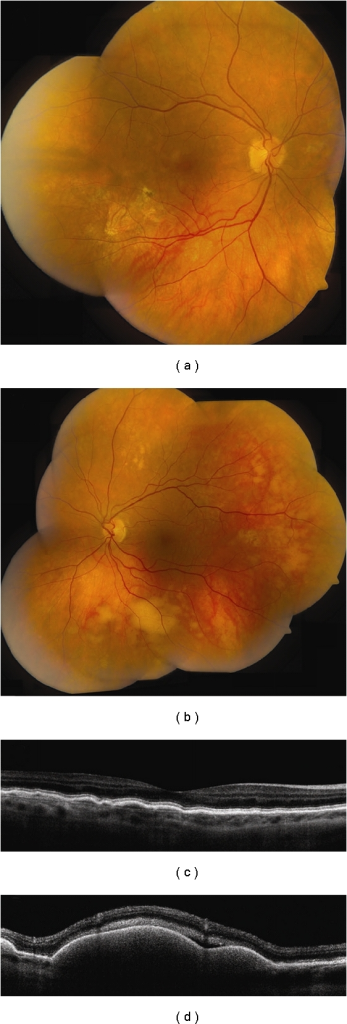 Vitreoretinal lymphoma. (a, b) Bilateral vitreoretinal lymphoma with multifocal cream-colored subretinal infiltrates. (c) Time domain OCT of the right eye reveals multiple nodular elevations of the RPE from deposits in the sub-RPE space. (d) Time domain OCT of the left eye shows multiple dome-shaped elevations of the RPE from more extensive infiltrates and subretinal fluid.