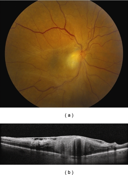 Retinal astrocytic hamartoma. (a) Juxtapapillary retinal astrocytic hamartoma with preretinal fibrosis and nasal dragging of the macula. (b) Spectral domain OCT image exhibits disorganization of the inner retinal layers and an intact RPE underlying the tumor. There is posterior shadowing presumably from calcification of the tumor apex. A dense epiretinal membrane causes the traction of the adjacent normal retina.