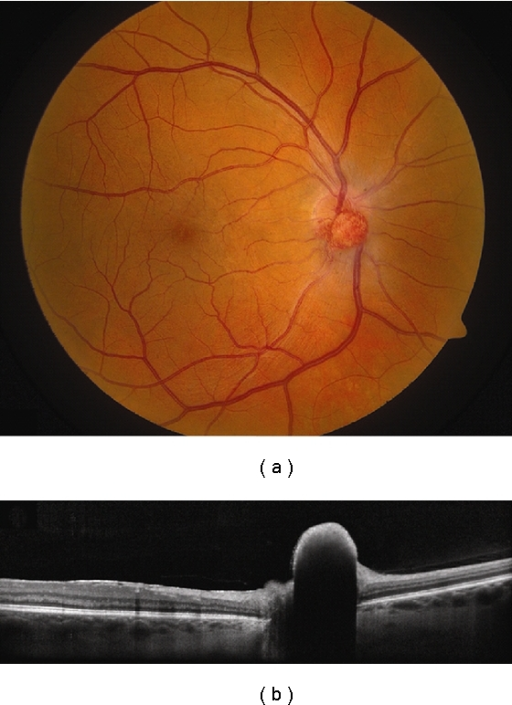 Hemangioblastoma. (a) Optic disc hemangioblastoma with a faint epiretinal membrane along the nasal edge of the fovea. (b) EDI OCT demonstrates a dome-shaped elevation of the inner retina with abrupt transition to the adjacent normal tissue and complete shadowing of the posterior layers. The adjacent RPE and choriocapillaris are intact.