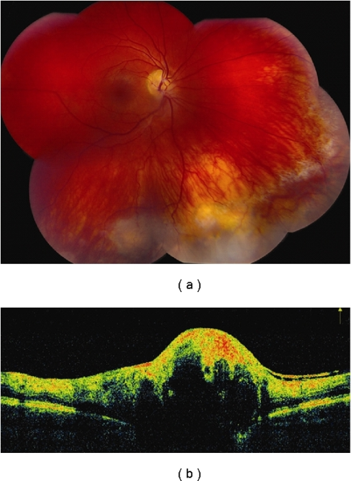 Vasoproliferative tumor. (a) Vasoproliferative tumor located at inferior periphery with preretinal fibrosis at its superior border and yellow subretinal fibrosis nasally. (b) Time domain OCT reveals a hyperreflective and disorganized inner retina with shadowing of the posterior layers including the RPE. An epiretinal membrane is seen at its posterior border.