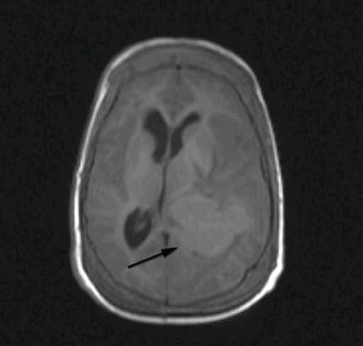 Axial T1-weighted MRI image demonstrating a well-demarcated isointense lesion in the left trigone with significant surrounding edema and mass effect.
