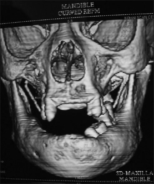 3D scan shows thickened mandibular cortical plate