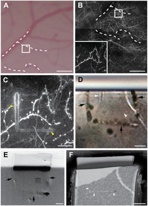 In vivo imaging, laser branding and tissue preparation.A, Cortical surface showing the vasculature on the surface of the brain. Dotted lines indicate the blood vessels that can also be seen as dark shadows in the 2PLSM (B), with the white square indicating the region imaged at higher magnification (inset). After fixation and sectioning this region (C) was then laser branded, and reimaged using 2PLSM. These branding marks were visible (D) in the resin block (indicated with white arrow heads) without any further enhancement. Their position is also highlighted with laser etching on the surface (black arrows) that can be seen in the FIBSEM (E). This indicates the region to be imaged (F) so that imaging and milling will capture the branded region (white arrow heads). Scale bar in A and B is 100 µm, and 10 µm in (C–F).