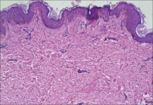 Skin biopsy revealed thickened reticular dermis with thick and haphazardly oriented collagen bundles. (H and E, ×100)