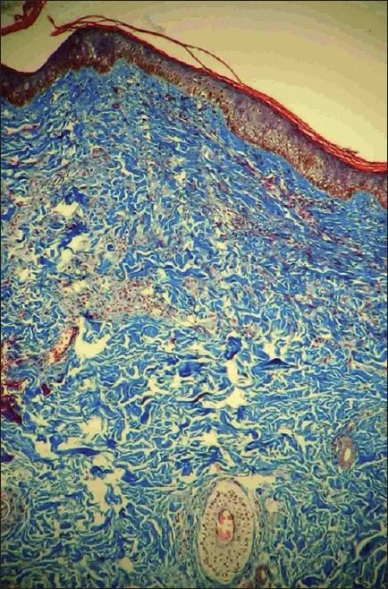 Photomicrograph showing dense thick collagen bundles in the dermis. (Masson's trichrome stain, ×100)