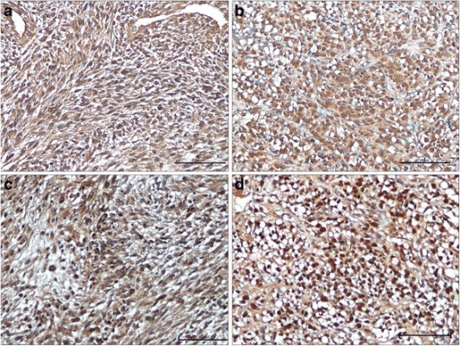 Expression of CXCR4 and IGF-1R in synovial sarcoma. Immunohistochemical expression of CXCR4 with cytoplasmatic (a) and nuclear (b) distribution. Immunohistochemical expression of IGF-1R with cytoplasmatic (c), and nuclear distribution (d) (IHC 20X).
