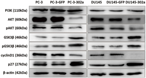 Overexpression of miRNA-302a in PCa cells triggers alterations in the AKT-GSK3β-cyclin D1 and AKT-p27Kip1signaling pathways.Western blot analyses showed downregulated AKT, phosphorylated AKT (pAKT) and cyclin D1 levels, and upregulated GSK3β,pGSK3β and p27Kip1 levels in miRNA-302a overexpressing PCa cells. PI3K levels were not affected.