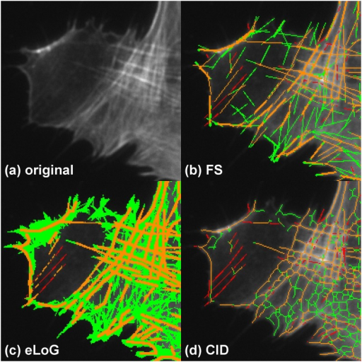 Performance comparison for inhomogeneous brightness and crossing lines.Showing a detail of cell M3. The subfigures represent (a) the original detail, (b) the results of the FS, (c) the results of the eLoG method and (d) the results of CID. Green pixels are false positives detected by the method, yellow are correctly identified pixels and red are missed pixels as in Fig 9.The FS produces a fair amount of false positives but fares quite well both in the dark region on the left as well as the bright region with crossing lines on the right. The eLoG method also find parts of the lines in the dark region albeit at the expense of significant oversegmentation in the bright region. CID detects lines almost exclusively in the higher contrast bright region, where it produces a cobweb structure with an amount of oversegmentation similar to the FS.