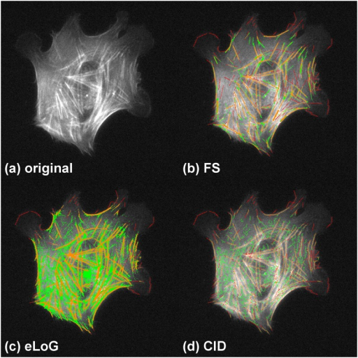 Performance comparison in the presence of noise.Showing cell B2. Green pixels are false positives detected by the method, yellow are correctly identified pixels and red are missed pixels as in Fig 9. For this image the FS fares much better than both other methods. The eLoG method as well as CID both find a large amount of spurious features, where the eLoG method detects large contiguous areas and CID produces a cobweb structure, covering nearly the whole cell. Especially in the left, lower, and central parts of the image the FS is the only method that does not detect a large amount of spurious line pixels.