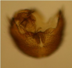 Ventral margin of gonocoxites.