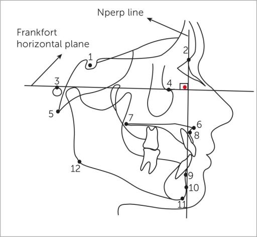 Cephalometric Landmarks 1 S Sella 2 N Nasion 3