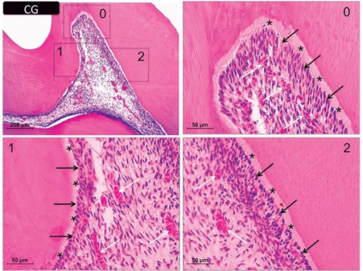 Representative images of hematoxylin & eosin-stained sections showing the coronal pulp of the controls. Panels 0, 1, and 2 are magnified images (400×) of the respective insets in the upper left panel (100× magnification). The black arrows indicate the odontoblastic layer and the white arrows show the distribution of cells and blood vessels in the subjacent tissue. Asterisks indicate the predentin layer
