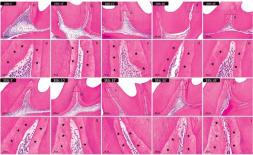 Representative images of hematoxylin & eosin-stained sections showing the coronal pulp 30 days after bleaching. Panels A, B, C, D, and E represent the groups treated with 20% H2O2 gel and panels F, G, H, I, and J represent those treated with 35% H2O2 gel for 5, 10, 15, 30, and 45 min, respectively (100× magnification). Panels a–j are magnified images (400×) of the insets in panels A–J, respectively. Stars indicate the reparative dentin layer; asterisks indicate the predentin layer. The values of the pulp chamber area were obtained as shown in Figure 1 to carry out the statistical analysis