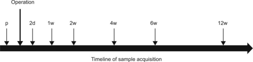 A timeline of the protocol for taking blood samples throughout this study.Notes: Blood was drained from each patient 1d p and 2d, 1w, 2w, 4w, 6w, and 12w after surgery.Abbreviations: p, preoperative; d, day(s); w, week(s).