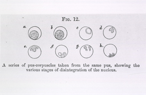 <p>Pus cells, showing various stages of disintegration of the nucleus.</p>