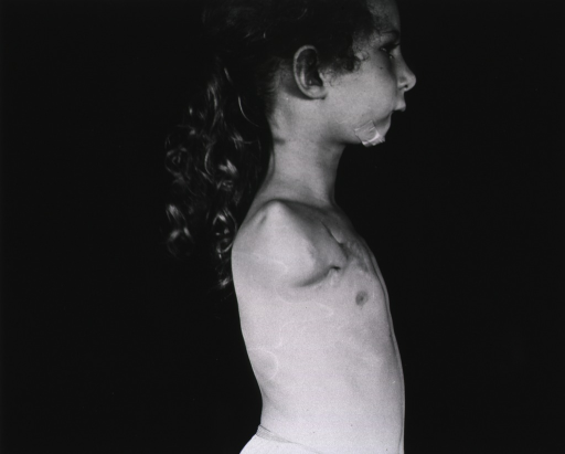 <p>A young girl with her arm amputated at the shoulder stands in profile.  She wears only undershorts.</p>