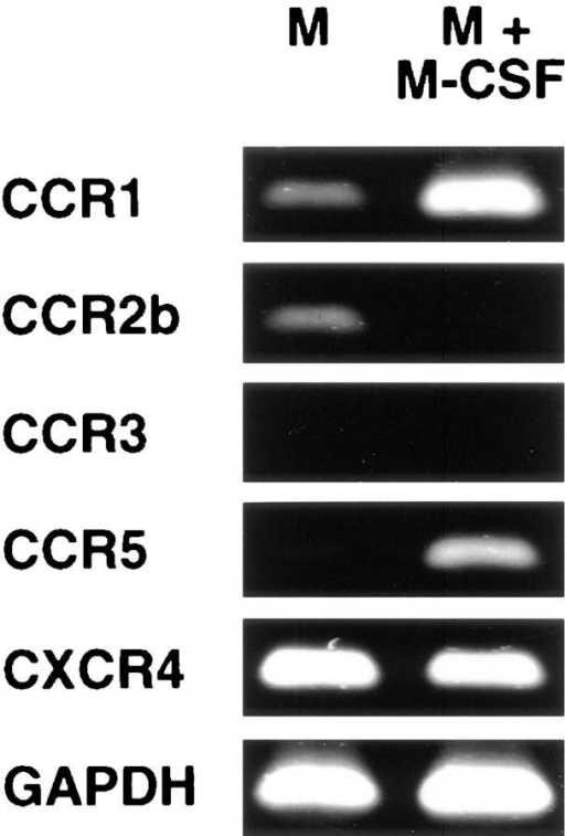 Reverse transcriptase– PCR analysis of chemokine receptor transcripts in monocytes  cultured in the absence (M) or  presence (M + M-CSF) of  M-CSF. Total cellular RNA was  subjected to reverse transcriptase– PCR analysis as described in Materials and Methods. Control reactions performed without reverse  transcriptase were negative for  each PCR product.