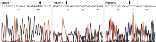 Novel mutations were found, including c.39_40insG in patient 3, c.927delC in patient 4 and c.434T>C in patient 5.
