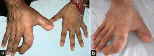 (a) Localized enlargement of radial aspect of right hand. (b) Close up of the localised enlargement